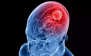 以色列研發出腦瘤治療新方法:通過影響特定基因抑制生長