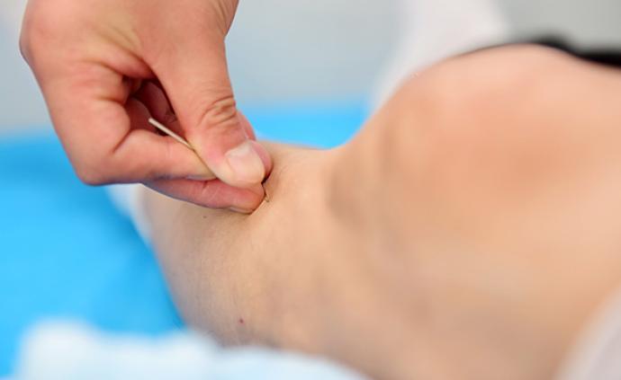 国家药监局:一次性使用针灸针存在超适应症使用的风险