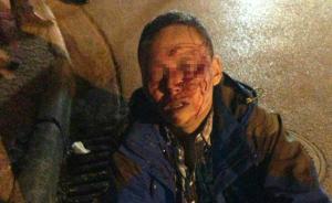 游客称被丽江警察打骨折,警方回应:打人者是民间巡防队员