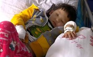 安徽女童遭母亲虐待案告破,两名施虐者涉故意伤害罪被刑拘