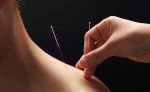 女演员淋巴瘤死亡应该归咎于传统针灸、拔罐、放血疗法吗?