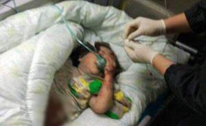 温州倒楼中被父母舍身防护的女童伤情稳定,将由叔叔抚养
