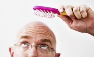 """""""秃顶""""到底能不能治,专家称不可随意停药"""