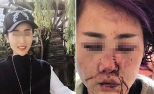 丽江被打毁容女孩代理律师:已拿到卷宗 ,还没形成完整意见