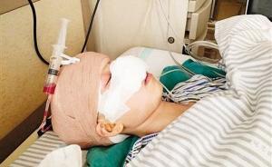 重庆女子离婚后被前夫咬掉鼻子,施暴者一审获刑6年并赔偿