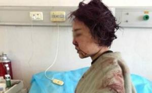 """""""女子丽江被打毁容""""案或于本月内开庭,6名被告人表达歉意"""