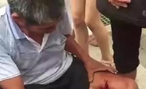 湖南永州一男子被野猪咬伤,警方调集猎犬围捕擒获